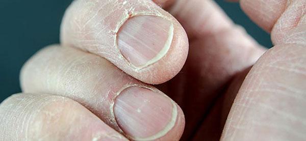 daño en la piel por agua dura